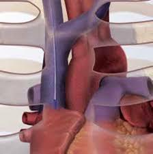 Tracheostomy Tube Malposition